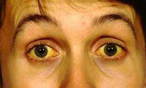 Симптом механической желтухи