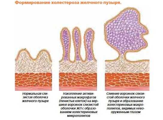 Формирование холестероза желчного пузыря