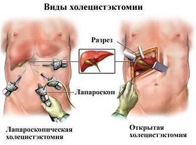 Виды холецистектомии