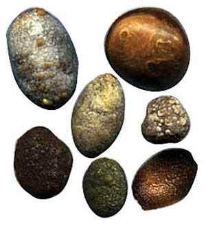 Камни смешанного типа в желчном пузыре
