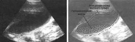 Варианты перегибов желчного пузыря на УЗИ
