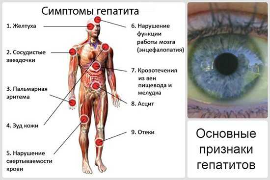 Симптомы воспаления печени