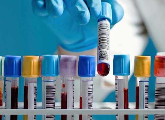 Анализ крови на печеночные пробы