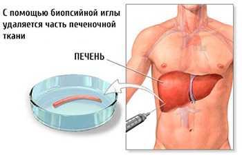 Что такое биопсия печени
