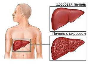 Анализы при циррозе печени, какие показатели указывают на заболевание
