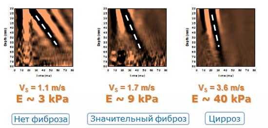 Оценка результата фибросканирования