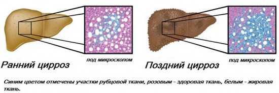 Цирроз печени стадии