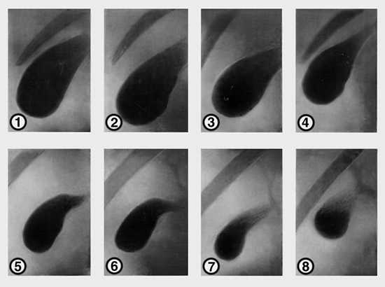 Холецистограмма результат исследования