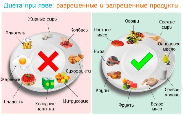 Щадящая Диета Язвы. Щадящая диета для желудка: описание меню и рекомендации питания