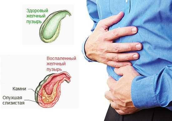 Симптомы острого холецистита