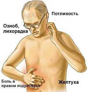Симптомы эмпиемы желчного пузыря