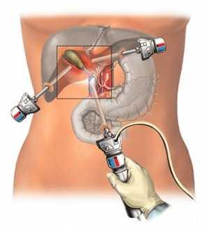 Как проходит лапароскопия желчного пузыря