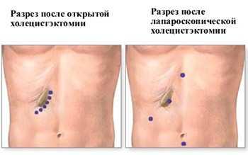 Разрез при полостной и лапароскопической операции