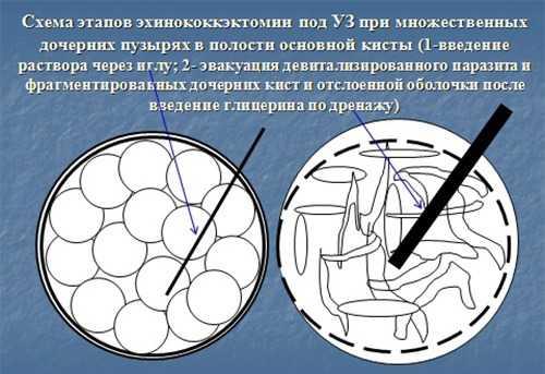 Эхинококкэктомия