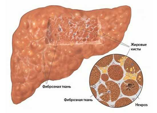 Что такое фиброз печени