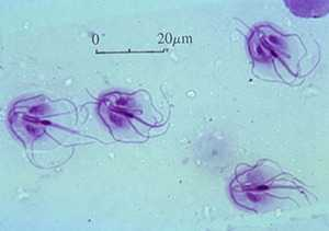 Подвижные лямблии под микроскопом