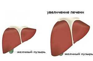 Гепатомегалия печени